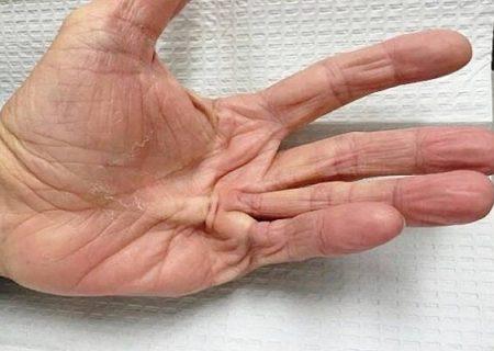 بیماری«کف دست»را بشناسید/مردان بیشتر مراقب باشند