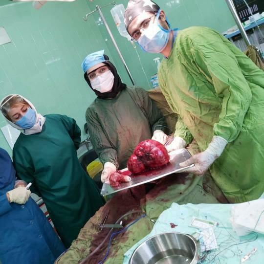 خروج توده شکمی پنج کیلویی در بیمارستان شهید مدنی آذرشهر