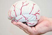 سکته مغزی در کشور ما ۱۰ سال کمتر از میانگین جهانی است
