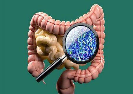 نقش میکروب های روده در بروز بیماری اوتیسم