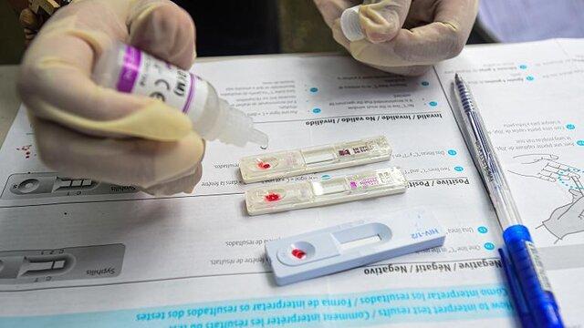 شناسایی ۱۷ مورد جدید ابتلا به ایدز در آذربایجان شرقی/ افزایش انتقال از طریق تماس جنسی