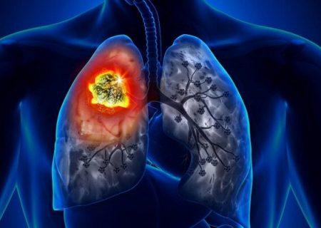 مهم ترین عامل بروز سرطان ریه/مردان بیشتر درگیر می شوند