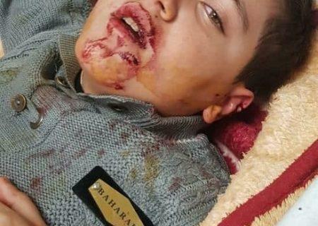 حمله سگهای ولگرد به کودک تبریز و مسئولیت شهرداری در تامین امنیت جانی شهروندان
